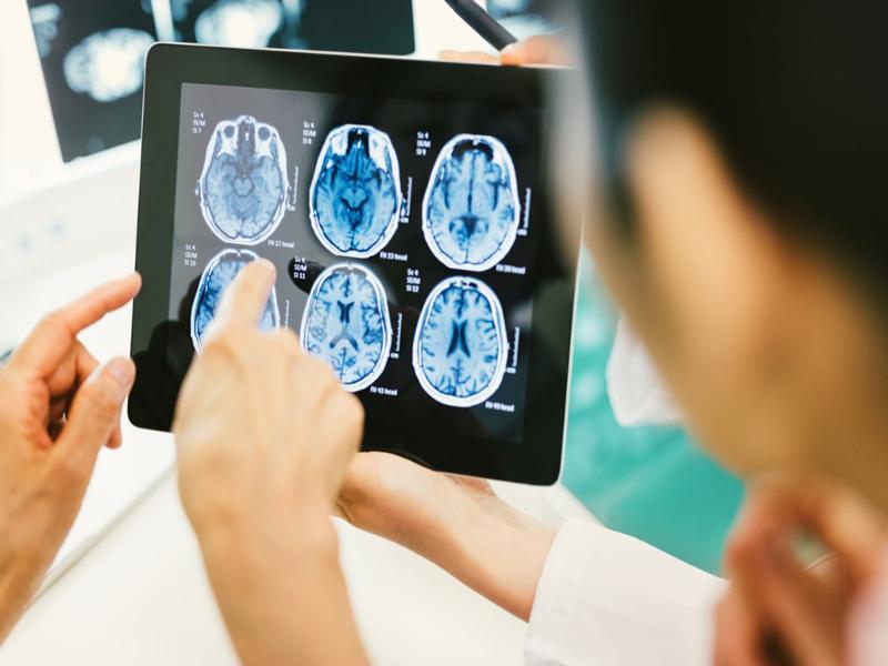 Latest Scientific Developments in Dementia Research